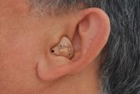 Die Hörgeräte bei Tinitus