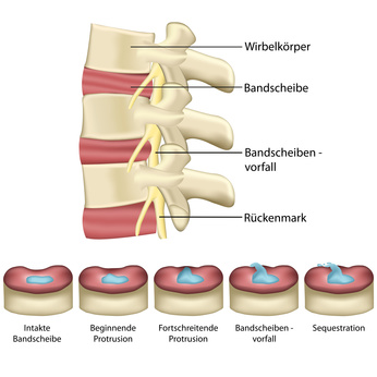 Bandscheibenvorfall - Wirbelsäule - Schaubild